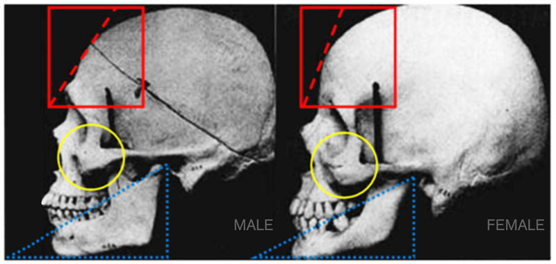 Male and Female Skull